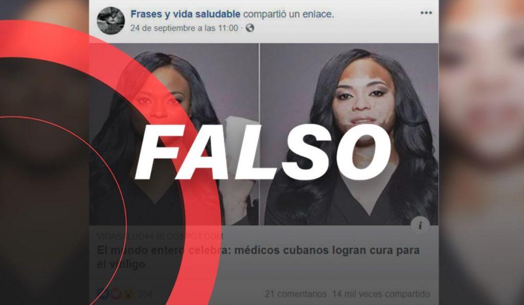 falso-vitiligo-cura-cuba