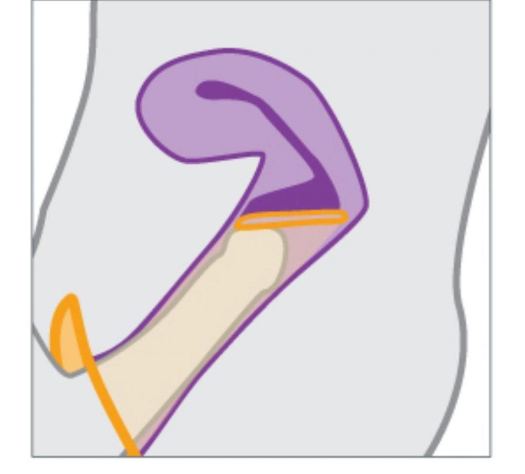 condonfemenino5 1024x926 - استفاده از کاندوم مردانه بهتر است یا زنانه؟